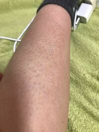 ムダ毛処理直後の足ですが、このように黒いポツポツが見えてしまいます。 なにか対処法はありませんか? もう脱毛するしかないでしょうか?