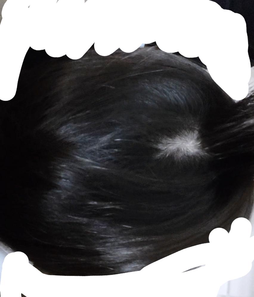 ここだけすごい皮膚が見えて上にかぶってる髪の毛はあるんですけどその下に生えてないんですけどこう...