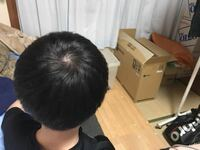 大学生1年の男性です。最近つむじ周りが気になってます。今まで染めたことはありません。これ禿げてますか?