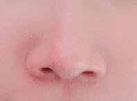 団子鼻について お見苦しい写真ですみません。 自分の鼻が大きくてコンプレックスなのですが、これはいわゆる団子鼻で鼻に脂肪が多いことが原因なのでしょうか…?