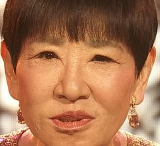 瞼 和田アキ子 和田アキ子も顔に変化…まぶたが下がる「眼瞼下垂」とは? 日刊ゲンダイヘルスケア