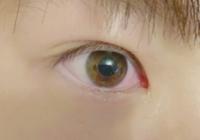 目が赤くなるまで泣くと目が二重になるのですが、なぜですか。腫れると一重になるってよく聞きますが、奥二重の私は泣いたあと腫れると二重になります。(?)腫れがひく、または寝ると奥二重に戻ります。