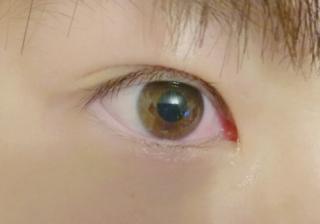 腫れる 目 泣く と なぜ が