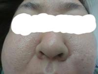 この肌は開き毛穴?15年くらいなやんでます。 洗顔を研究したり、化粧水なども『開き毛穴』や 『毛穴』に特化したものを散々試しましたがどれもダメでした。 ここまで汚いと、もう皮膚科とかですかね??? ファ...