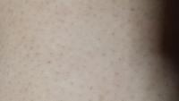 中学生のムダ毛の処理について。 私は母親で母親娘は中学1年生で軽度の知的障害があり、町立の中学校の特別支援学級に所属しています。 娘は男性ホルモンが多いらしく、毛深いくて、脚・腕・脇・あごの毛が濃くて...