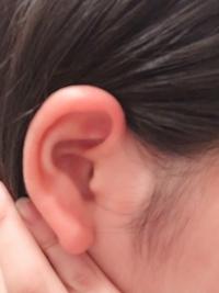 トラガスをニードルでセルフで開けようと思っています。 ピアスのゲージを14にするか16にするか迷ってます。 私の耳の写真です。 どっちがいいと思いますか?