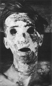 【ホラー注意】この画像はアシッドアタックの被害に遭われた方の写真と聞いたことあるのですが、それってリアルで本当ですか? 最初はネットのホラーコラ画像だと思ったのですが…