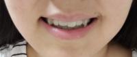 口角が左右非対称であることや顔の輪郭の歪んでいることに悩んでいます。 その改善方法を教えて頂きたいです。   歯並びについては、歯列矯正を始めてから随分経っているので綺麗な方だと思います。    自分なりに調べて、「片側の歯ばかりで噛まない」「バッグを同じ方の肩ばかりに掛けない」など様々なことに注意していますが、一向に変化が見られません。    アドバイスよろしくお願いします。