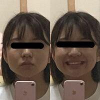 ランニングして体重が落ちても顔のお肉が全く落ちません。特に笑った時に顔の肉が盛り上がって顔がアンパンマンのように丸くなるのが気持ち悪くてなんとかしたいです! 159センチの50キロなのですが、顔だけ見ると60キロくらいあるように見えるのではないかと思います。 YouTubeで見た顔痩せ体操、造顔マッサージは入浴中に行っています。 どうすれば顔がガリガリになりますか?頬がこけるくらいに痩せてみ...
