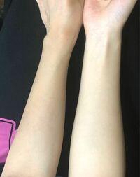 日焼け止めを毎日塗って、美白効果のあるサプリを飲んでいたら腕の表も裏と同じ色になりますかね?
