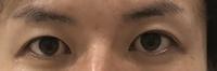 二重切開の伏し目について。  男ですが伏し目の不自然さが気になります。 やはり仕方ないことなのでしょうか?  目を開いてるときはめちゃ自然で満足です。 写真あります。  ただ伏し目 は食い込みが強い...