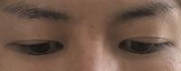 切開二重の伏し目は食い込み仕方ないですか?  写真の伏し目はやはり不自然でしょうか? 術後2か月の男です。 開眼時は文句ないです。