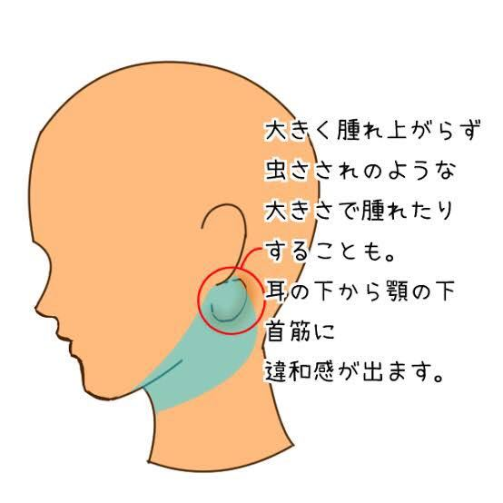 下 耳 なし の が 熱 痛い 片方