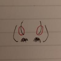 鼻がコンプレックスです。 団子鼻で鼻先が大きいので、赤い丸の部分がもっこり出ているのですが、これは脂肪溶解注射(BNLS)でマシにすることはできますか??