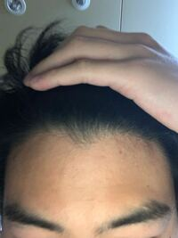 高校生です。禿げてきたのですが対策ありますか?