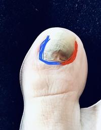 右足の親指の爪 サッカーボールの蹴り方が良くなく、爪が黒く変色し、グラグラしだしました。 赤の部分は指から離れてますし面の部分も浮いてますが、青の部分は指にくっついたままなので、剥 がれません。  このまま放置でいいですか? 痛みはありません