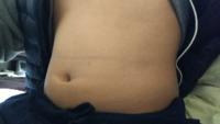このお腹どう思います? ぽっちゃり?デブ?  高校生女子です  体脂肪率どれくらいですかね?