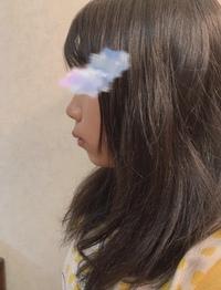 ゴボ 芸能人 口 日本人に多い歯並び「口ゴボ」。改善するとお顔の印象が8割変わる? (2021年5月10日)