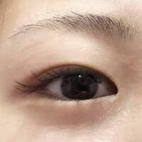 下まぶたが分厚いです。 拾い画ですが、私の目は画像のように下まつげの存在感がありません。  上まぶたが分厚いのなら、脂肪吸引をすればいいのはわかっていますが、下まぶたが分厚い場合、改善するにはどのような整形がありますか?  私は上下共にまぶたが重く、目が小さいです。そのためか眼瞼下垂でもあります。小さい頃からコンプレックスなので、お金を貯めて整形しようと考えています。今のところ、上まぶたの脂...