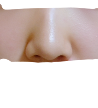 団子鼻かにんにく鼻かどっちですか?