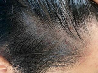 ニキビ 頭皮