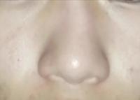 この鼻の画像の感じ 鼻翼縮小と鼻尖縮小をしたら綺麗になると思いますかね?なんかオススメの手術があったら教えて貰えると光栄です