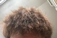 12月終わりに初めてツイストパーマをかけました。  かけた時がとても短く、それが原因なのか思った通りのパーマにはなりませんでした。 画像のようにチリチリ。 自分の髪質は、かたく少し癖 があります。 髪...
