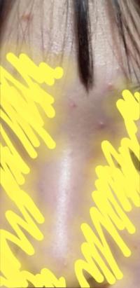 肌を綺麗にする方法を教えてください、中3です。 最近顔にニキビが大量発生しだしました。なかでも眉間やおでこ、鼻が酷く、イチゴ鼻も気になっています。洗顔料はロゼッタの黄色の物を使っていて、風呂上がりには病院から貰った化粧水と乳液を塗っています。それでもよくならず困っています、頬周りや顔全体の毛穴を引き締める方法、肌を綺麗にする方法を教えてください。