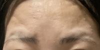 眉丘筋を目立たなくする方法を教えてください。  私は元々すごく角度のある濃いアーチ型眉で、平行眉にしつつ目と眉毛の距離を近づけたくて上の方の毛を抜いて足りない所をペンシルで描いてい るのですが、写真の通り眉丘筋がものすごく目立ってしまいます。コンシーラーで黒ずんでいるのを消しても横から見た時に眉毛の上だけ緊肉がもっこりと出てしまいます。  眉丘筋が目立ちすぎて流し前髪などをしたいので...