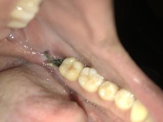食べかす 抜歯 穴