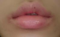 唇の端、下唇周りが 赤いです。 どうしてでしょうか?