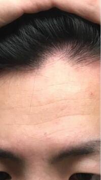 M字ハゲやばいです 23男です おすすめな育毛剤 や対策方法あれば教えてください!