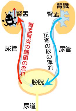腎炎 仕事 腎盂