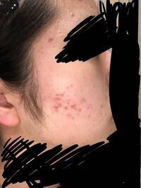 ニキビが全然治りません。 ニキビ、ニキビ跡が治るスキンケアの仕方、 出来にくくなるスキンケアの仕方を教えてください。  私がいつもしてるスキンケアは 洗顔(パーフェクトホイップ)→ハトムギ化粧水 →メラノC...