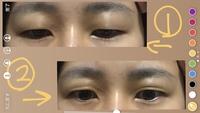 ひとつでも答えてくだされば嬉しいです( ; ; )  眉下切開を考えています。 ①力を入れてない目で正面を見てます。 ②力を入れた状態です。力を入れると脂肪が目の上に乗ります。眼瞼下垂で しょうか? 目を大きくして美容目的で二重になりたいので眼瞼下垂の手術ではなく眉下切開→埋没で考えていますがそれで大丈夫か心配です。  アイプチ等は二重にならないので全然やってません。 また、...