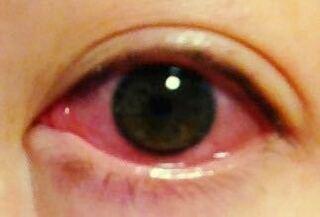 が 朝起き たら 痛い 目 朝起きて、目の奥が痛い時はマジで重症です。ココを読んで、すぐに医者に相談しよう