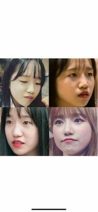 チョユリちゃんは鼻を整形してると思いますか? もししていたらなんの術式でしょうか?? ユリちゃんの元の鼻が私の鼻と似ているので整形するとしたらユリちゃんと同じ方法でやりたいなと思ってます。