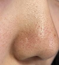 汚い画像すみません。高校生の女子なんですがこの写真は朝の洗顔前です。鼻がいつも脂でテカって毛穴もあってすごく汚いです。夜はビオレの毛穴ジェルで洗顔して鼻だけ冷水で最後にすすいで、ハ トムギ化粧水、ジ...