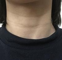 【画像付き】どうすれば首のシワと黒ずみを落とせますか?