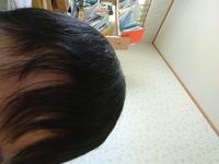 美容師の方お願いします。僕は高校生でハゲています。そのため前髪がスカスカです。周りを意識してしまいます。おでこを出した方がいいのかなと思いますが、どうすれば良いですか?髪型、前髪の 対処方法を教えて...