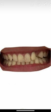 歯並びが悪いです。 この歯並びで喋ってたらやっぱり気になりますか? 自分も気になって人と喋るだけでストレスです。 ちなみに空いてる所はちゃんと歯が生えてます。
