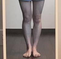 汚い脚ごめんなさい。 私は身長150で下半身太りが酷いです。 そのうえ歪んでいて足が曲がっています。 こういう脚はXO脚というのでしょうか? 歪みの改善方法を教えていただけると 嬉しい です!