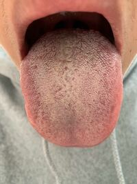 汚い画像すみません 5年前から口臭に悩んでいて 3年前くらいに舌苔が原因だと思い舌磨きを毎朝、毎晩していました、それでも全然舌苔は落ちないし、息もくさいです、磨きすぎだとはわかっていますが、 他になにか悪い所があるのかなと思います わかることがあればなんでも教えてください お願いします ♂️
