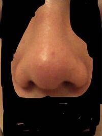 質問なんですが、僕の鼻は団子鼻という分類なんでしょうか? あまり鼻筋がスッとしていなくて、鼻の先が少し丸いのがコンプレックスなんです。山崎賢人さんとか鼻筋がスッと通っていて鼻先もスッとしているのに憧...