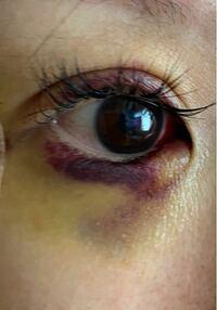 涙袋ヒアルロン酸金曜に打ちました翌日、翌々日からこんな酷くなりました 最悪です 目の中白目も内出血してます