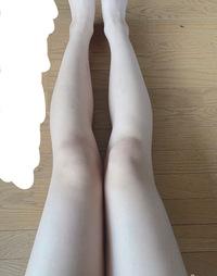 まず先に、汚脚ですみません^^;  これは私の脚なのですが、膝が内側に曲がっている(?)せいで太く見えてしまっていて悩んでいます。 (ちなみに立っている時はこの写真もっと内側にひざが入っ ているように見え...