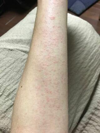蕁 麻疹 性 コリン