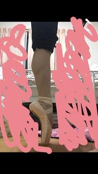 15歳、バレエをやっています。 ポアントを履いたとき、鍵立ちになってしまい悩んでいます。一見、甲が出ているように見えますが、甲が高いのではなく指が折れ曲がっているだけで、立っていると いうよりも乗っか...