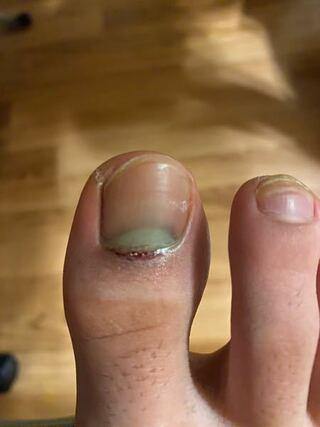 剥がれる 爪 内出血