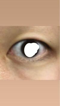 一重です。瞼は薄い方だと思いますが、アイプチで瞼がたるんできたようなきがします。 折式などの皮膜タイプも二重にはなるものの瞬きするとすぐ戻ってしまいます。 粘着タイプのアイプチしか二重にすることがで...